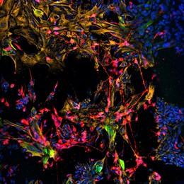 EEUU.- Células madre cultivadas reconstruyen la estructura nerviosa y tisular de