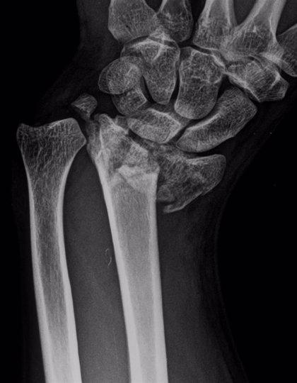 Los pacientes con riesgo cardiovascular padecen más osteoporosis y fracturas