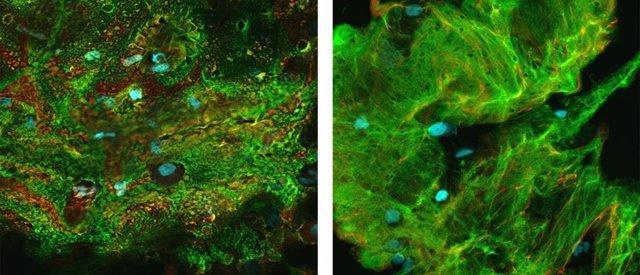 EEUU.- Hallan cómo la acumulación de moco, no las infecciones, desencadena daño