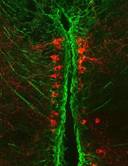 Pistas sobre el Parkinson observadas en peces pequeños podrían ayudar en la búsqueda de tratamientos