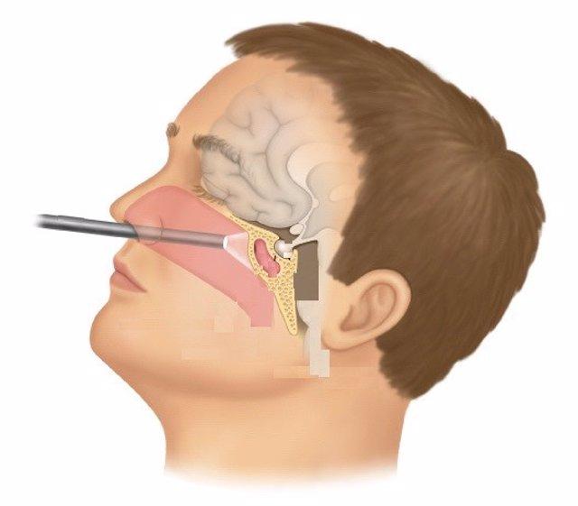 Un procedimiento mínimamente invasivo, la mejor opción para tumores como la enfe