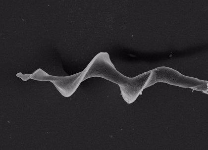 Los espermatozoides en forma de espiral son más rápidos pero también se dañan con mayor frecuencia, según estudio