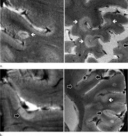 EEUU.- La resonancia magnética de alta resistencia rastrea la progresión de la e