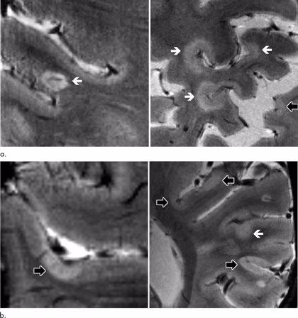 La resonancia magnética de alta resistencia rastrea la progresión de la esclerosis múltiple
