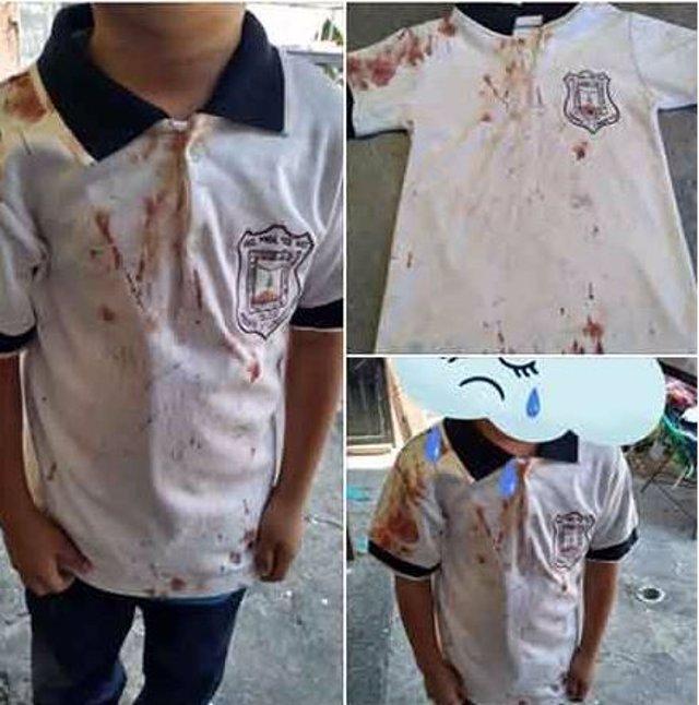 Con una camiseta ensangrentada, una madre denuncia en redes el bullying que sufre su hijo
