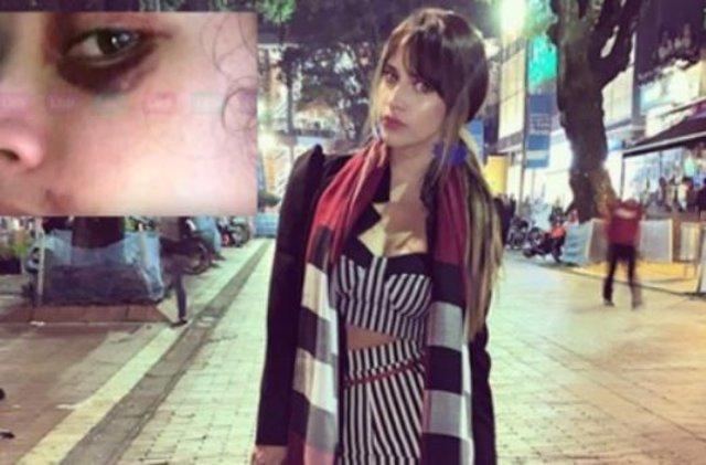 La actriz colombiana Zulma Rey publica fotos tras sufrir una brutal paliza supuestamente por su exnovio