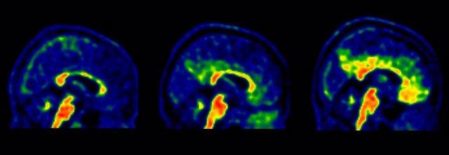 Identifiquen nous valors associats a l'Alzheimer que permetran ampliar la prevenció