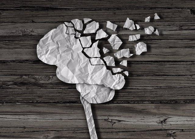 Investigadores españoles demuestran que los pacientes con Alzheimer sufren ya atrofias en el cerebro a los 40 años