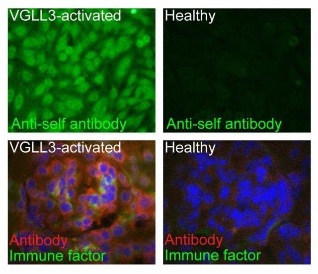 Un estudio en ratones explica por qué las mujeres contraen más enfermedades autoinmunes