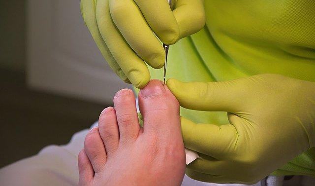CValenciana.- El Colegio de Podólogos abre expediente a un profesional por ejercer en una ortopedia