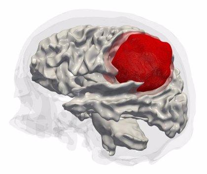 Crean células madre de cáncer cerebral mediante ingeniería inversa para hallar un tratamiento