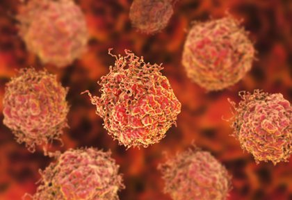 Una dosis única de radioterapia dirigida es segura y eficaz para el cáncer de próstata