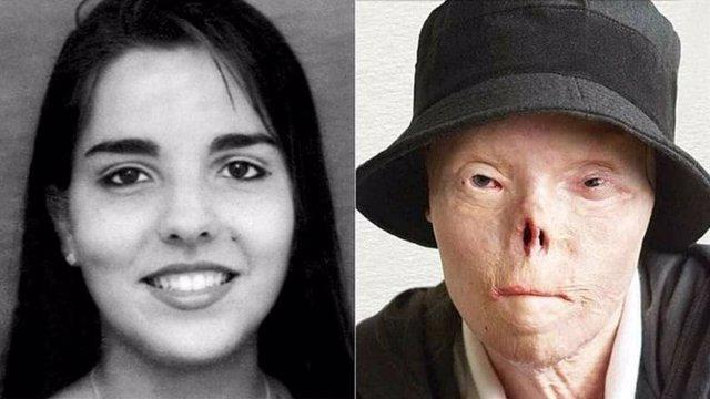 La valiente historia de la venezolana Jacqueline Saburido, la mujer que se quedó sin rostro por un conductor ebrio