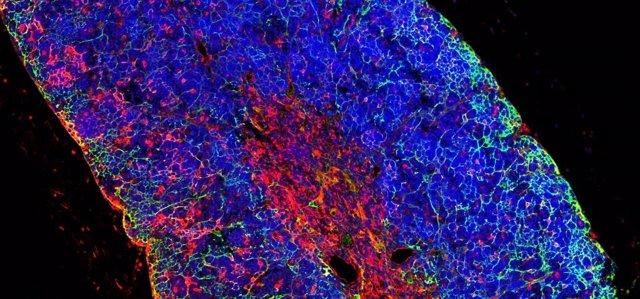 Identifican una proteína que podría conducir a mejores tratamientos en leucemia mieloide aguda