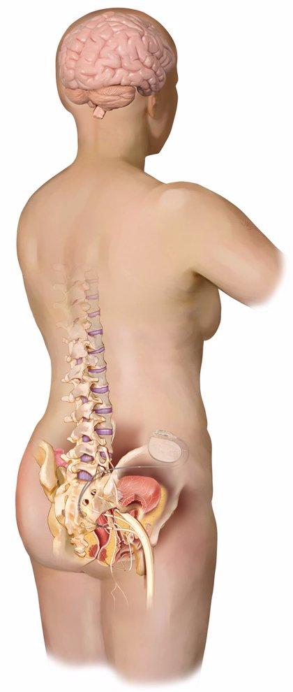La Fe de Valencia, pionero en implantar un sistema de neuromodulación de raíces sacras para la incontinencia urinaria