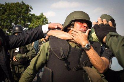 """La ONU se encuentra """"extremadamente preocupada"""" por el """"uso excesivo de la fuerza"""" contra manifestantes en Venezuela"""