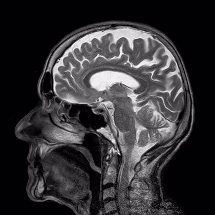 El tacto podría activarse en el cerebro incluso antes de nacer