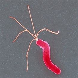 La inflamación causada por la bacteria 'Helicobacter pylori' lleva a tumores gástricos, según un estudio