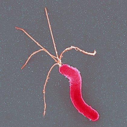 Descubren cómo consigue 'helicobacter pylori' sobrevivir en el ambiente hostil del estómago