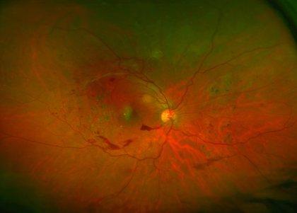 Desarrollan un dispositivo móvil para la detección de la retinopatía diabética