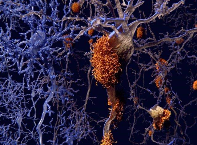 Hallan un mecanismo que podría dar lugar a un tratamiento para enfermedades neurodegenerativas