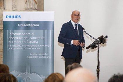 """Un informe sobre abordaje de cáncer de pulmón ve """"margen de mejora"""" en modelo organizativo de la actividad asistencial"""