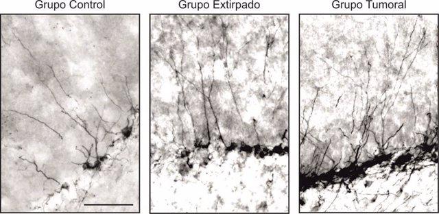 Sevilla.- Investigadores de la UPO y el IBIS revelan un importante papel de la hormona de crecimiento en el aprendizaje