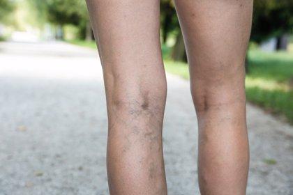 El sellado de varices evita lesiones térmicas en nervios próximos