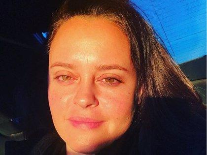 Shaila Durcal, al natural al mostrar las secuelas de su fatal accidente