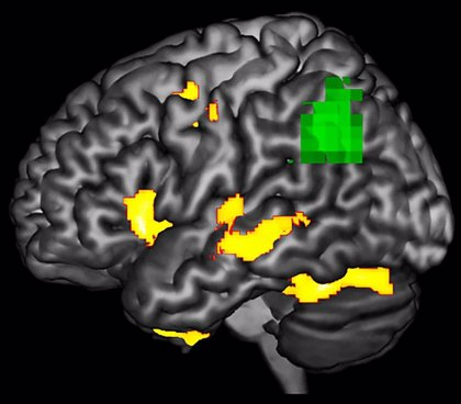 Investigadores hallan una nueva forma de detectar la neurodegeneración antes de que las neuronas fallezcan
