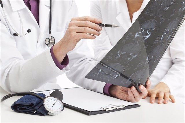 El colesterol bajo, relacionado con mayor riesgo de hemorragia cerebral en las mujeres
