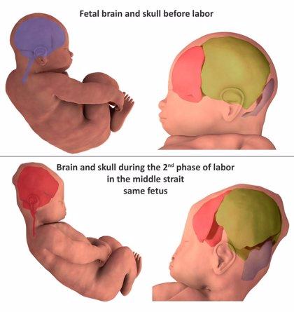 Los cerebros y los cráneos de los bebés cambian de forma momentos antes del parto natural