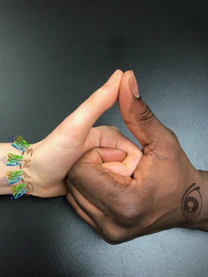 Una proteína sensible a la luz ajusta el color de la piel
