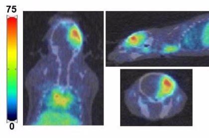 Descifran una técnica que podría mejorar las terapias contra los tumores cerebrales