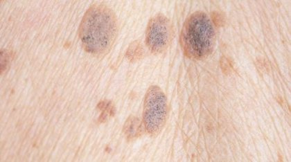 23 de mayo: Día Mundial del Melanoma, ¿cómo podemos prevenirlo y cuáles son los factores de riesgo?