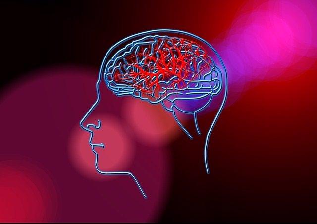 La mujeres son menos propensas que los hombres a ser diagnosticadas con un accidente cerebrovascular leve
