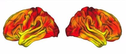 Un estudio demuestra la presencia de bacterias orales en la embolia cerebral