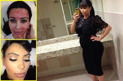 ¿Qué es el efecto Kardashian?