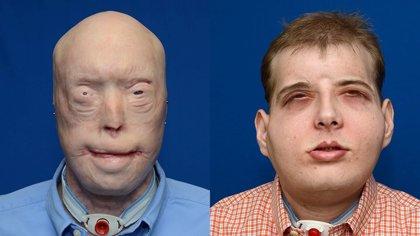 Tras un trasplante de cara, los pacientes siguen mejorando 5 años después