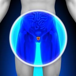 Descubren un biomarcador que identifica a los hombres con cáncer de próstata en mayor riesgo de metástasis