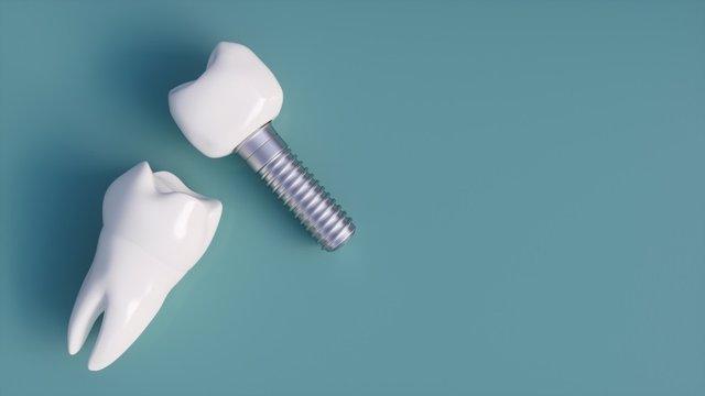 Breve guía sobre implantes dentales: ¿De qué están hechos? ¿Cuándo no se recomiendan?