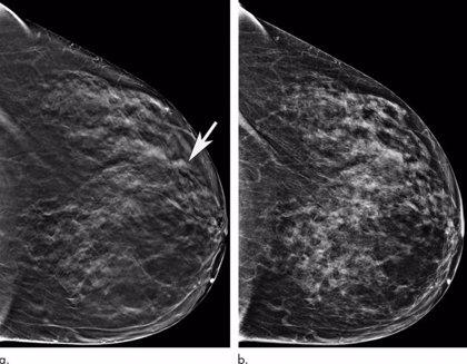 Este algoritmo podría ahorrar a las pacientes con cáncer de mama 5 años de terapia hormonal