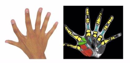 Tener seis dedos permite realizar actividades con una mano que normalmente requieren de las dos