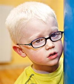 Niño albino. Niño con ganas que sufre albinismo
