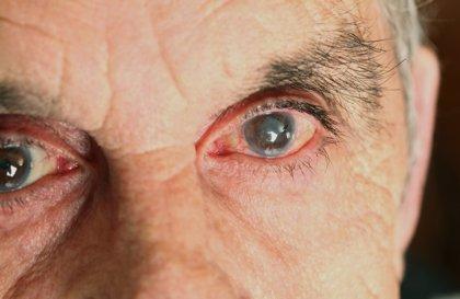 Conoce la uveítis, cuando se puede perder la vista de forma permanente