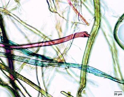 Investigadores calculan que cada persona ingiere unas 70.000 partículas de microplásticos al año