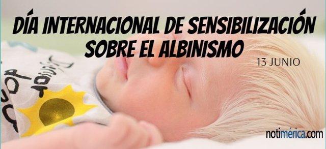 13 De Junio: Día Internacional De Sensibilización Sobre El Albinismo, ¿En Qué Consiste Esta Enfermedad?