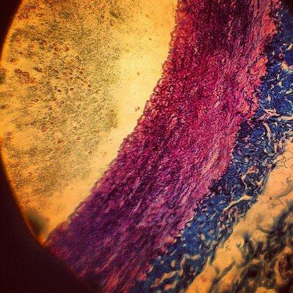Un tratamiento para el acné podría servir para tratar el endurecimiento de las arterias