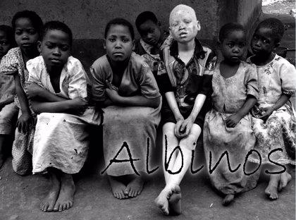 La Fundación África Directo crea una iniciativa para concienciar sobre el drama que vive la población albina en África