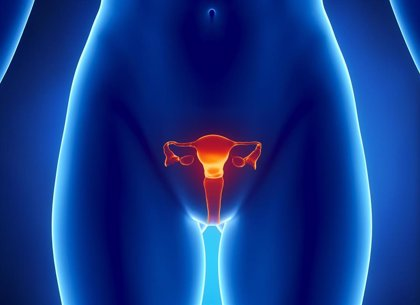 La quimioterapia con carboplatino y paclitaxel es el mejor tratamiento en cáncer de endometrio